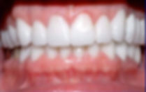 Dr. Kunal Patel performs dental care services in New Haven ,CT, Hamden, CT, West Haven, CT, East Haven, CT, Wallingford, CT, Shelton, CT: Emergency treaments, Periodontal Treatment (gum treatment), Pain management, treatment for bleeding gums, oral hygiene education, healthy gums,  Affordable Dentist, for kids, adults, and seniors. Specialty Dentistry at Connect Family Dental, With Dr. Patel and his Dental Staff.