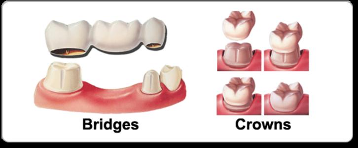 Crown and Bridges