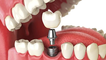 Dr. Kunal Patel performs dental care services in New Haven ,CT, Hamden, CT, West Haven, CT, East Haven, CT, Wallingford, CT, Shelton, CT:  Dental Implants, Single Implants, Multiple dental Implants, replacement of a tooth, Affordable Dentist, for kids, adults, and seniors. Specialty Dentistry at Connect Family Dental, With Dr. Patel and his Dental Staff.