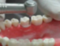 Dr. Kunal Patel performs dental care services in New Haven ,CT, Hamden, CT, West Haven, CT, East Haven, CT, Wallingford, CT, Shelton, CT: crown preparation, permanent tooth, protect tooth, tooth color crown, Affordable Dentist, for kids, adults, and seniors. Specialty Dentistry at Connect Family Dental, With Dr. Patel and his Dental Staff.