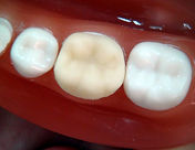 Dr. Kunal Patel performs dental care services in New Haven ,CT, Hamden, CT, West Haven, CT, East Haven, CT, Wallingford, CT, Shelton, CT: types of permanent crowns, don't removed crowns, Silver crown preparation, permanent tooth, protect tooth, tooth color crown, Affordable Dentist, for kids, adults, and seniors. Specialty Dentistry at Connect Family Dental, With Dr. Patel and his Dental Staff