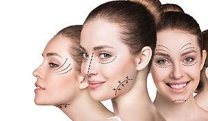 Филъри с хиалуронова киселина за оформяне на устни, скули и брадичка