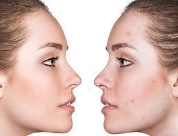Лечение и премахване на акне