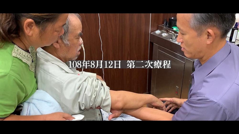 Mr. Chiang's second treatment at Liu Shun