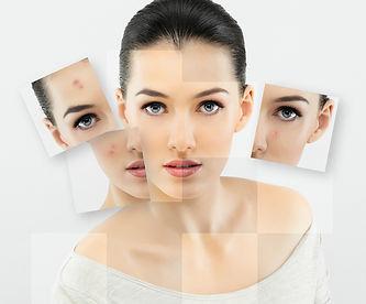 girl face acne.jpg
