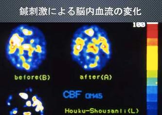 針刺激による脳内血流の変化