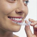 Invisalign, Ortodonzia linguale, ortodonzia funzionale, Santarcagelo, Ferrara, Rimini, Bologna, Funo, Ortodonzia