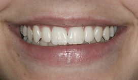 Smile after work by Porteous and Burke Dentistry