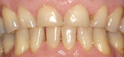 Before crowns by Porteous and Burke Dentistry