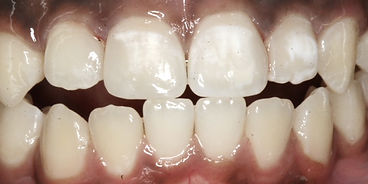 After Fillings by Porteous and Burke Dentistry