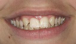 Smile before work by Porteous and Burke Dentistry