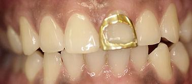 Before Veneers by Porteous and Burke Dentistry