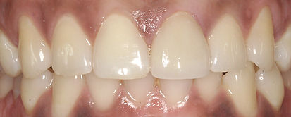 After Veneers by Porteous and Burke Dentistry