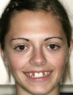 implant middle face.jpg
