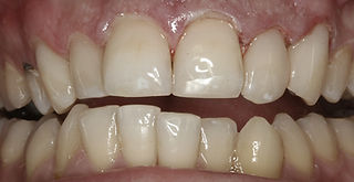 After fillings by Porteous and Burke Family Dentistry