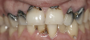 Before Fillings by Porteous and Burke Dentistry