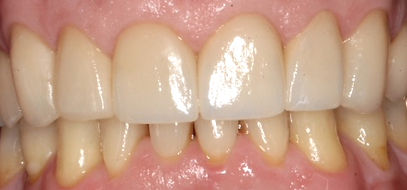 After crowns by Porteous and Burke Dentistry