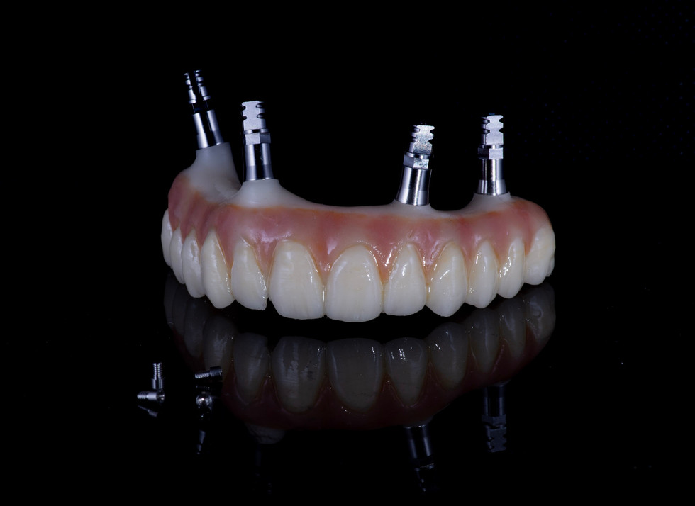 All-on-four immediate temporary full arch bridge milled in acetal, customized with GC Optiglaze