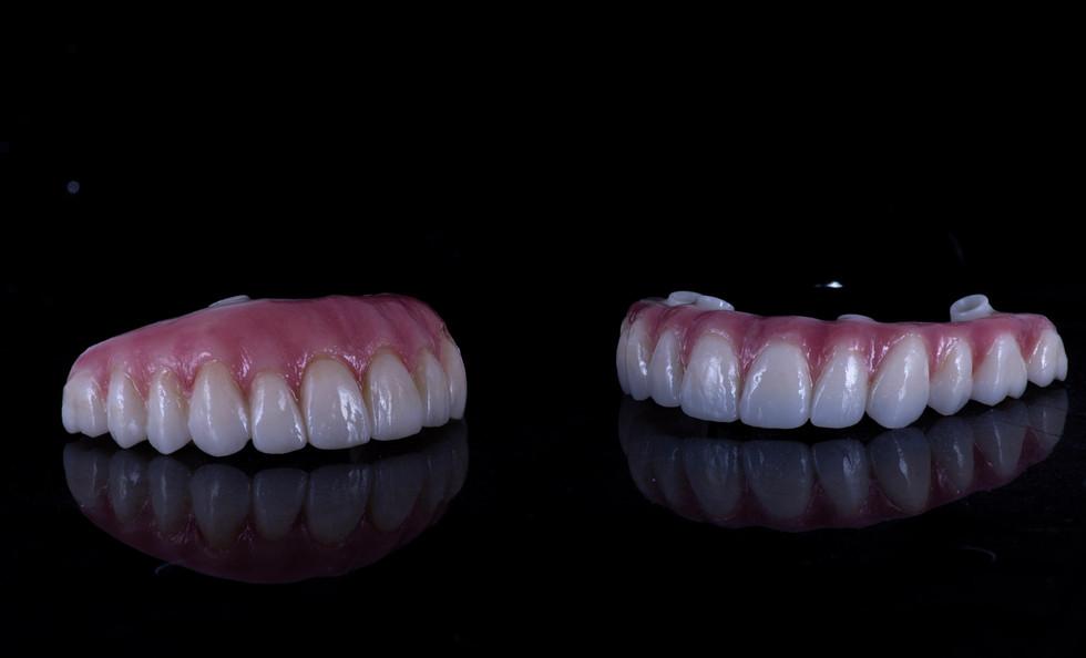Full arch zirconia implant bridges