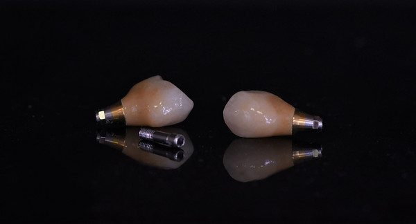 Monolithic zirconia implant crown with characterisation using GC Lustre Paste