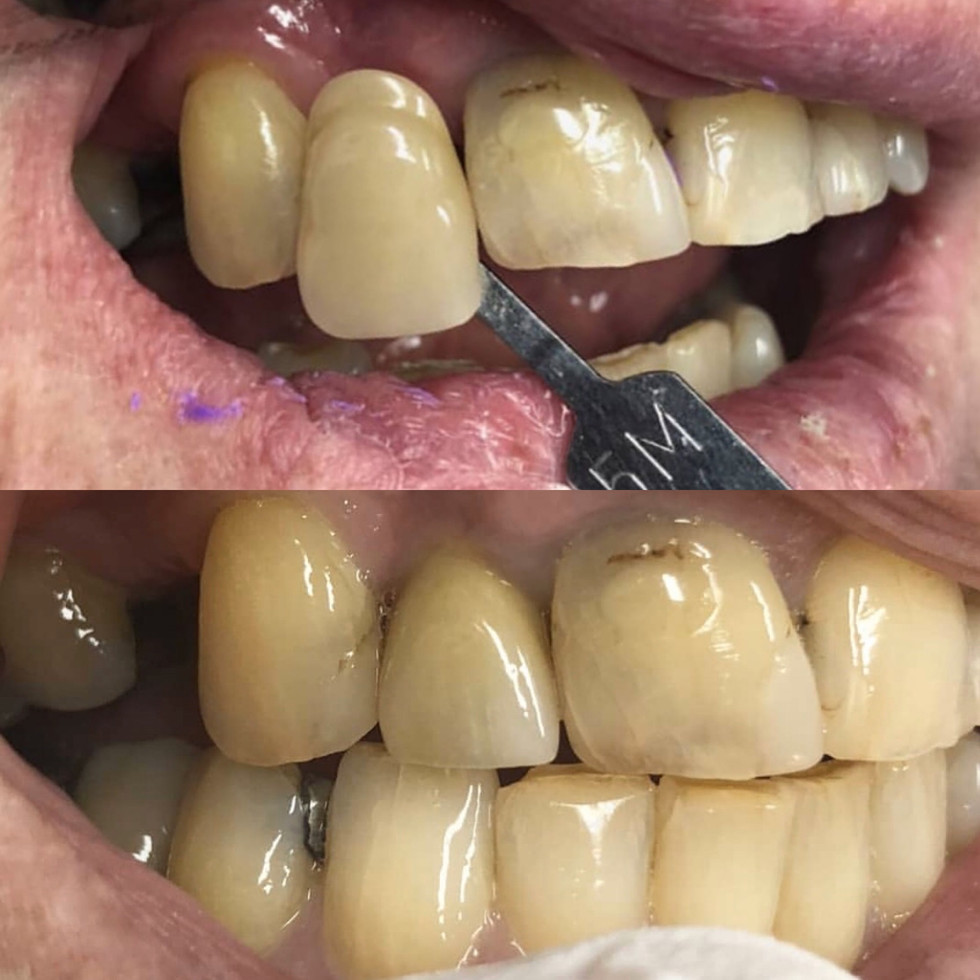 Hand layered Porcelain Fused to Zirconia (PFZ) implant crown #12 with custom shade match