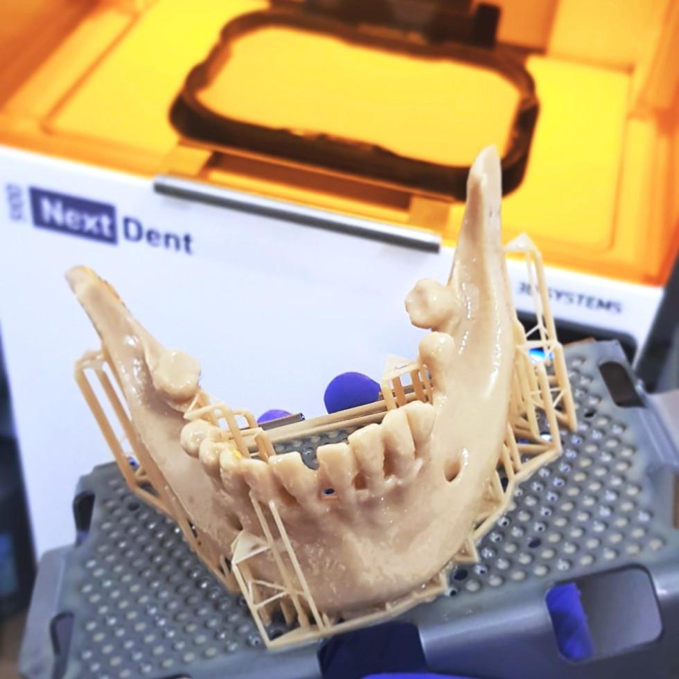 3D printed mandible for case diagnosis