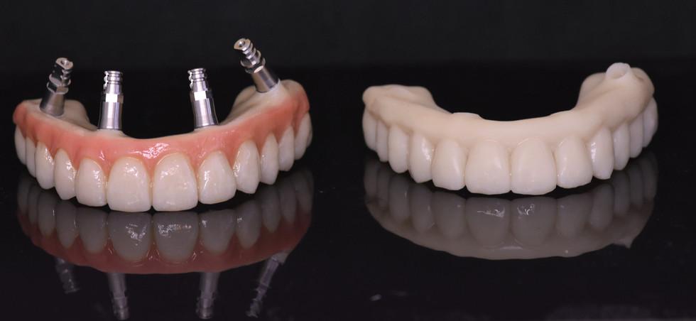 All-on-four Immediate temporary full arch bridge 3D printed, customized with GC Optiglaze