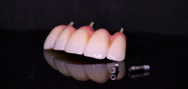 Monolithic Zirconia Implant Bridge with Gingival Layering and Custom staining