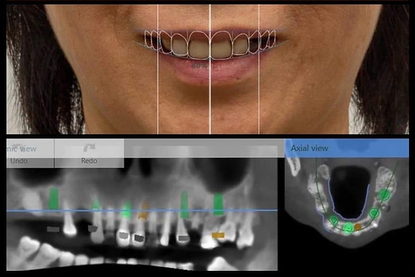 Full arch treatment planning with Digital smile diagnosis + Implant planning via 3shape Implant Studio