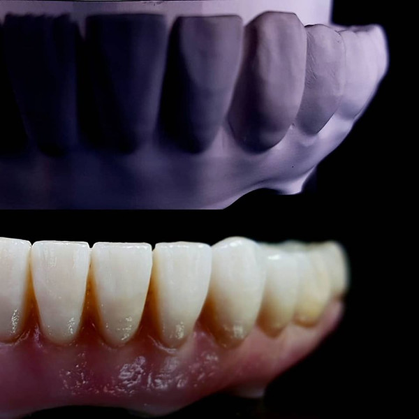 Presintered vs final zirconia full arch bridge with labial porcelain layering