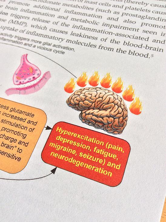 brain inflammation photo from book