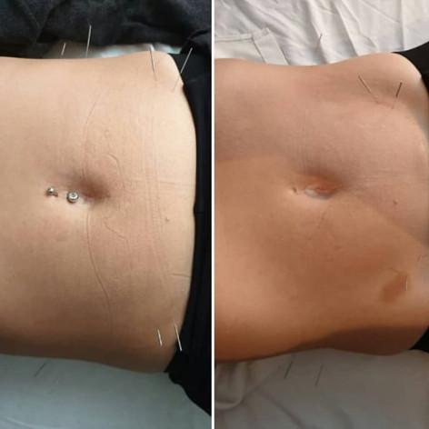 Ibs - Svullen mage - smärta i magen