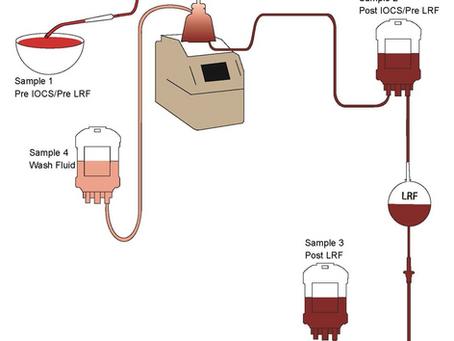 血腹と回収血輸血