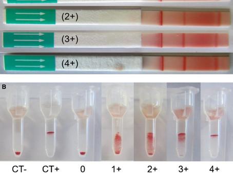 輸血による同種免疫感作