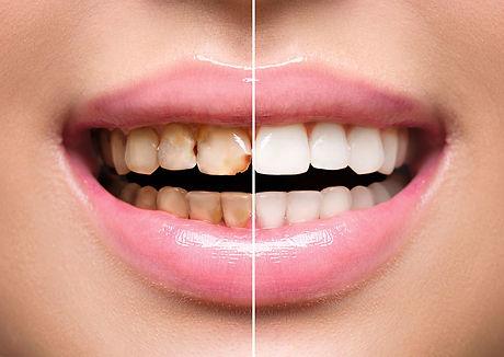 teeth-restoration.jpg