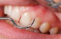 gum-disease-treatment-san-diego-periodon