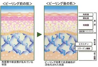 フルーツ酸ケミカルピーリングトリートメント