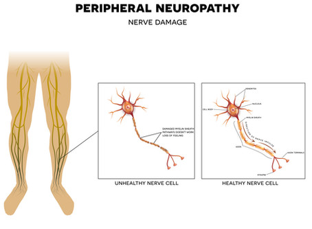 Neuropathy Relief With Laser Therapy