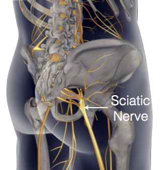 Sciatica?  Here's what to do and what not to do...