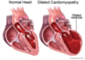 Cardiomyopathy.jpg