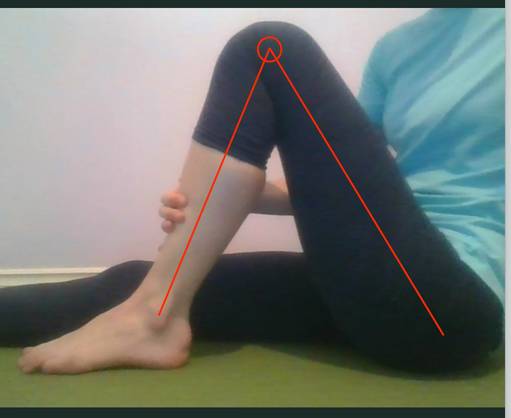 Assessing knee flexion range of motion - 4 weeks post-op ACL reconstruction