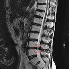 Spinal Stenosis,  Physical Therapy, BBN, Lexington