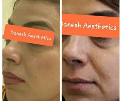 Is Botox a form of skin rejuvenation?