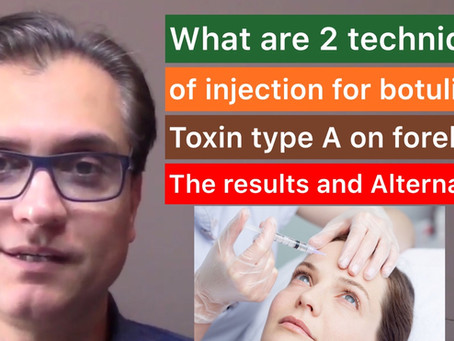 What to expect after Botox injection on your forehead? Different techniques and Alternatives?
