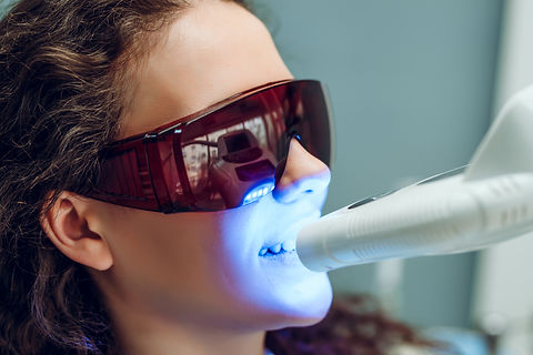 Laser bleaching teeth at dantist room. T