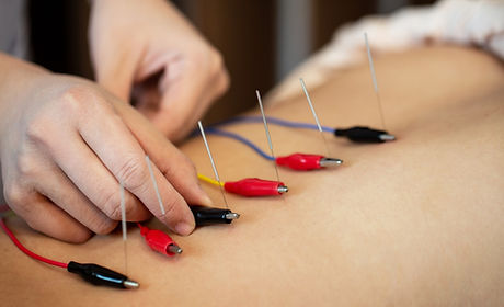 Electro-Acupuncture_edited.jpg