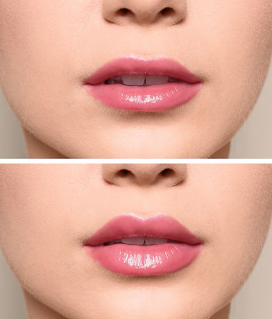 Woman before and after lips augmentation