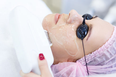 Skin care pigmentation removal and Anti-