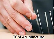 Acupuncture| Sports Injury| Chai Chee / Bedok