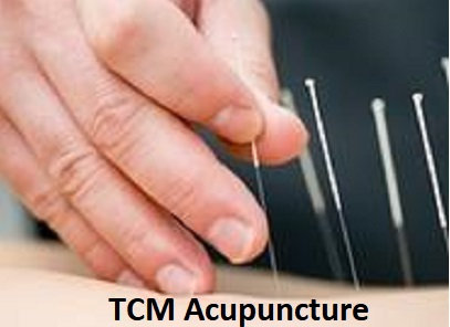 First Visit Acupuncture Offer